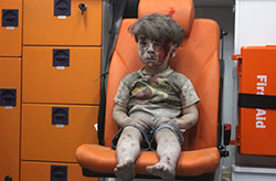 Syrian kid Omran Daqneesh sits alone in the back of the ambulance